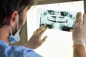 dental technology panorex imaging