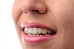 san diego dentist invisalign preferred provider